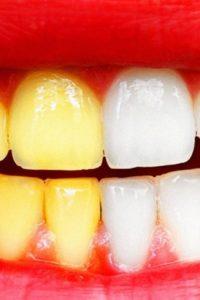 10 способов отбеливания зубов